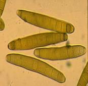 helminthosporium maydis